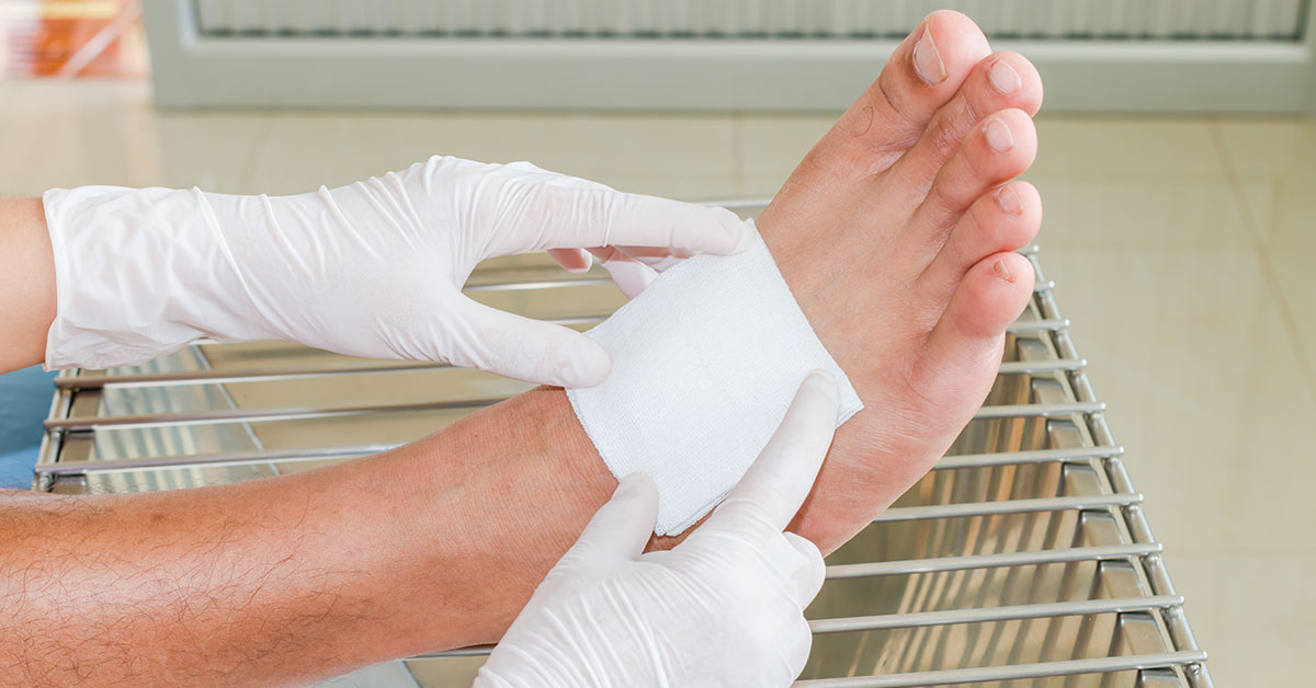 Foot image with bandage